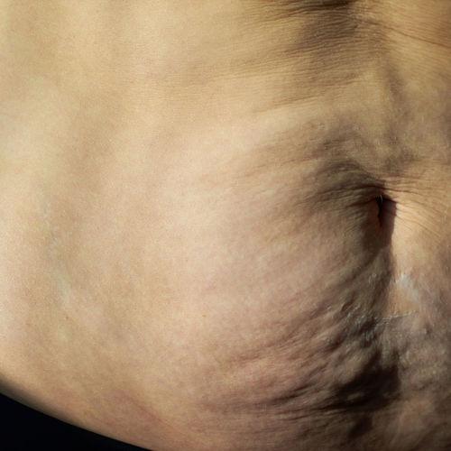 Diastáza brušných svalov a prepojenie s core systémom